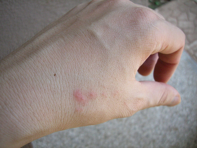 minor reaction to bed bug bites