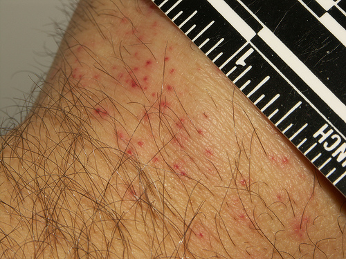 Does The Same Bed Bug Bite More Than Once
