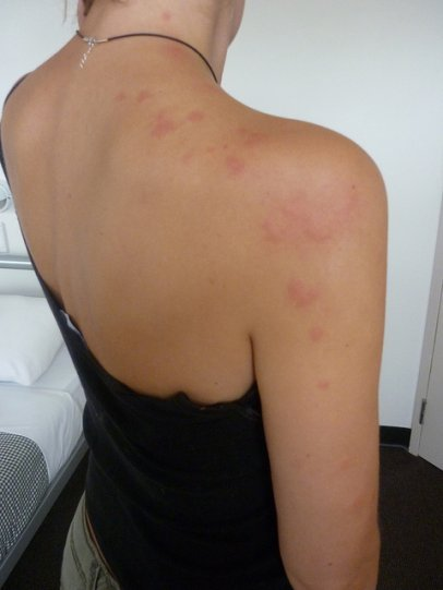 bedbug bites on woman's neck, shoulder, back and arm