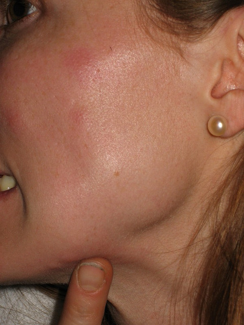 bed bug bite marks on a woman's face