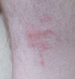 bed bug rash on leg